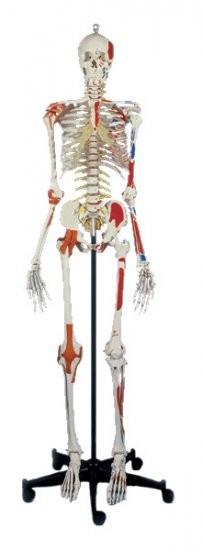 Super-Skelett